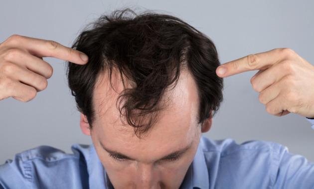 FoliFort Hair Supplement